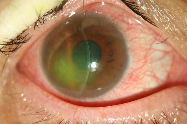 荧光素染色显示着色区(绿色)为角膜上皮糜烂